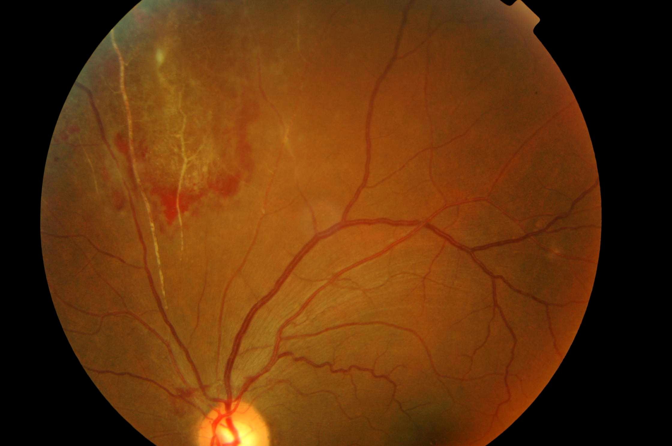 uveitis updated3