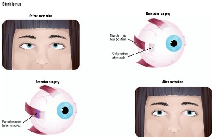 strabismus surgery3
