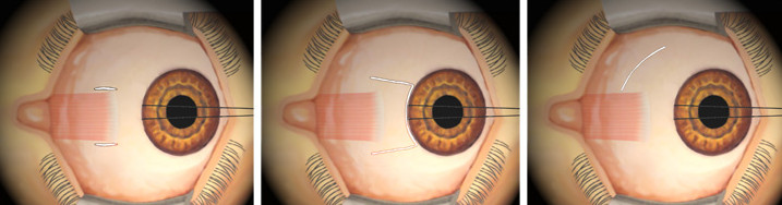 strabismus surgery2