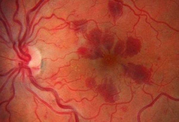 Valsalva retinopathy associated with riding a motorcycle