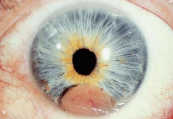 Pseudohypopyon due to malignant infiltration of the anterior chamber in multiple myeloma