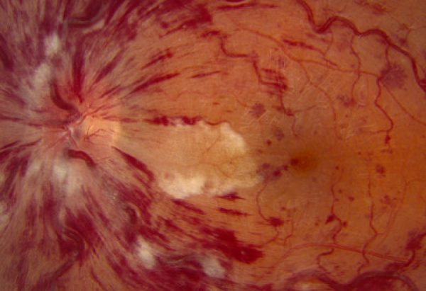 Central retinal vein occlusion following trabeculectomy with OloGen in patients with advanced glaucoma: a possible side-effect?