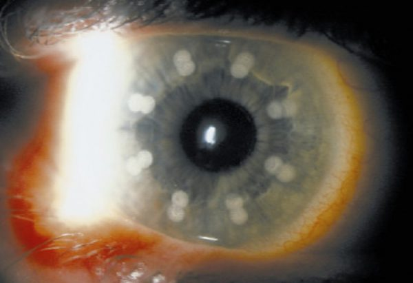 Non-contact holmium:YAG laser thermal keratoplasty for hyperopia: two-year follow-up
