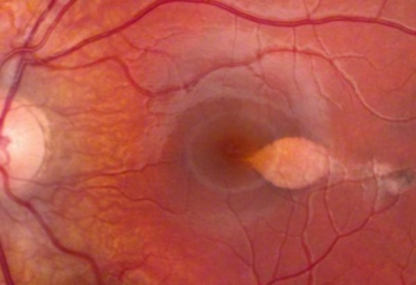 An unusual maculopathy after routine cataract surgery