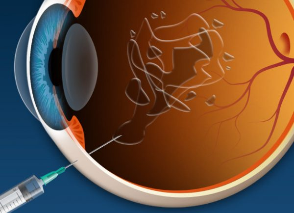 How Successful is Switching from Bevacizumab or Ranibizumab to Aflibercept in Age-Related Macular Degeneration? A Systematic Overview