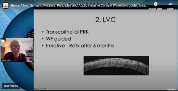 Bruce Allan MD, FRCS - Schwind Peramis: Principles and Applications in Corneal Wavefront guided treatments